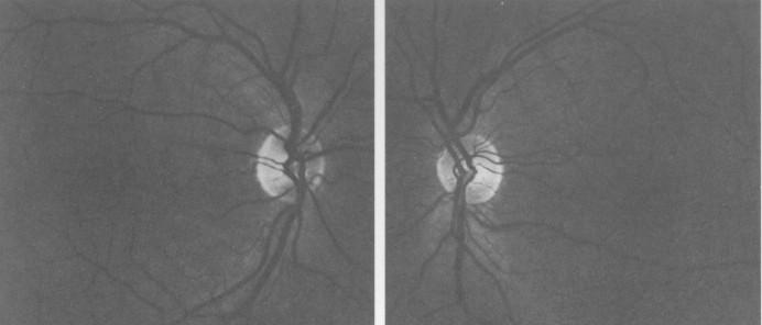 Retinas, 1998